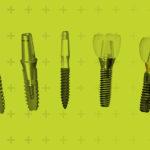 sisteme-implanturi-dentare
